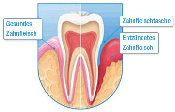 thumb-zahnfleischerkrankung